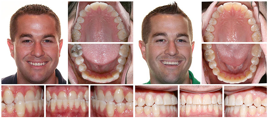 Invisalign before after Springfield MO