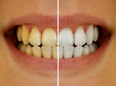 teeth whitening Springfield